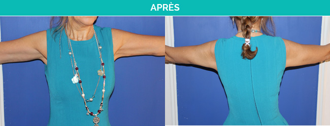 brachio-Apres
