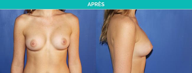 implants-1-Apres