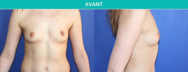 implants-1-Avant