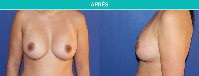 implants-3-Apres