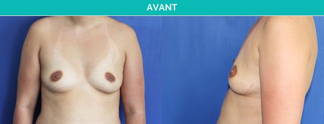 implants-3-Avant