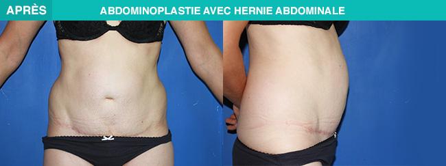 APRÈS Abdominoplastie avec hernie abdominale
