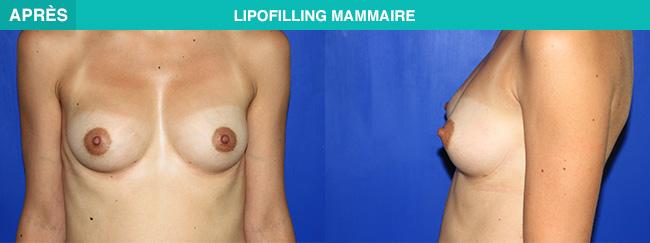 APRES Lipofilling mammaire