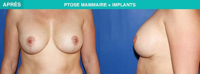 APRES Ptose mammaire + implants