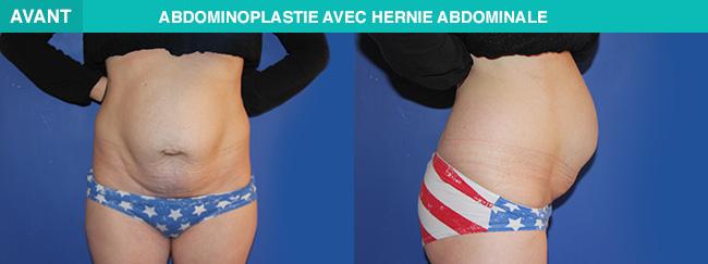 AVANT APRÈS Abdominoplastie avec hernie abdominale