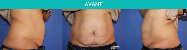 Abdos-Avant