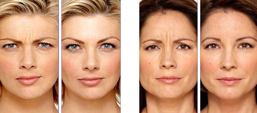 Botox dr Martinet nantes 5