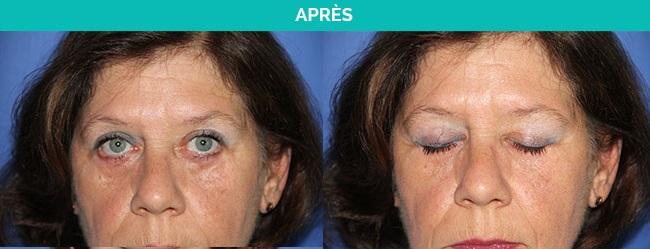 blepharoplastie-nantes-apres