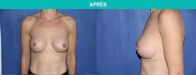 protheses anatomiques - nantes - apres
