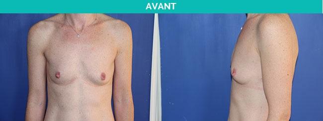 protheses anatomiques - nantes - avant