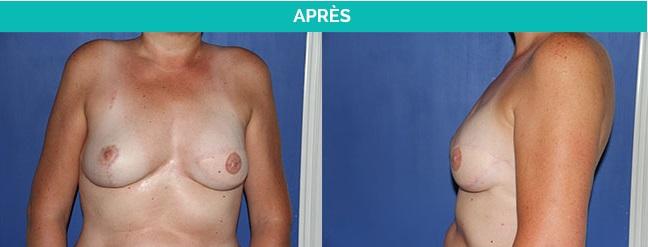 reconstruction mammaire - nantes - apres