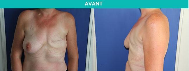reconstruction mammaire - nantes - avant