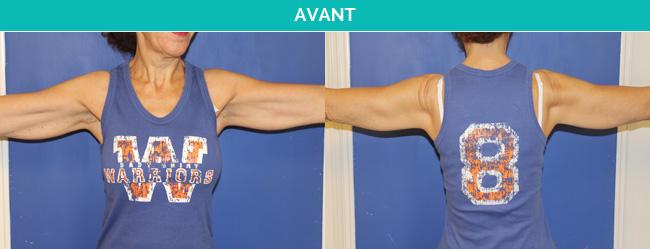 brachio-Avant