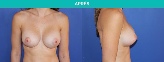 implants-2-Apres