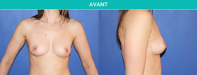 implants-2-Avant