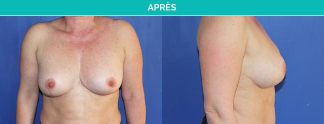 ptose mammaire-Apres Dr Martinet
