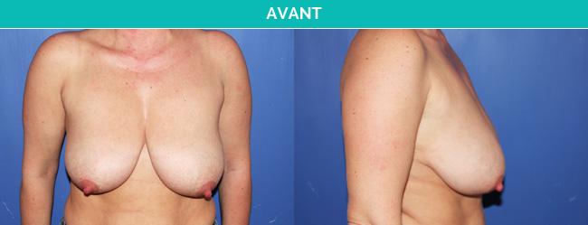 Ptose mammaire-Avant Dr Martinet